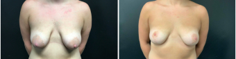 breast-lift-surgery-nyc-before-after-1-1