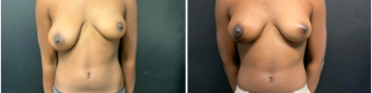 breast-lift-surgery-nyc-before-after-2-1