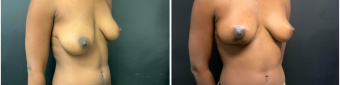 breast-lift-surgery-nyc-before-after-2-3