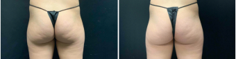 buttock-augmentation-nyc-before-after-2-1