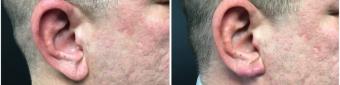 earlobe-repair-surgery-nyc-before-after-1-1
