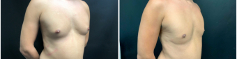 gynecomastia-liposuction-sugery-nyc-before-after-1-4