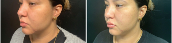 lip-enhancement-nyc-before-after-1-2