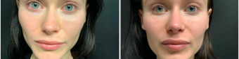 lip-enhancement-nyc-before-after-2-1