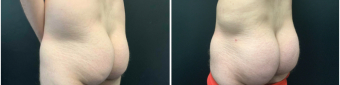 men-liposuction-fat-transfer-nyc-before-after-1-5