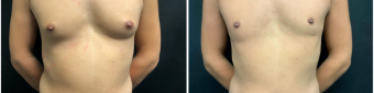 gynecomastia-liposuction-sugery-nyc-before-after-1-1