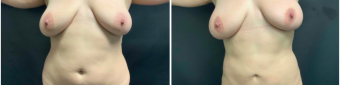 liposuction-surgery-nyc-before-after-1-1