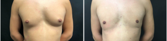 liposuction-surgery-nyc-before-after-2-1
