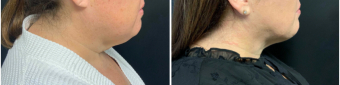 liposuction-surgery-nyc-before-after-3-1