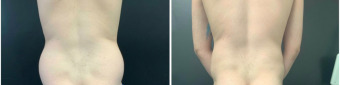 men-liposuction-surgery-nyc-before-after-1-5