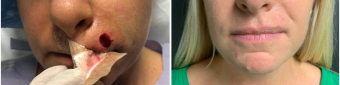 mohs-surgery-nyc-before-after-4-1