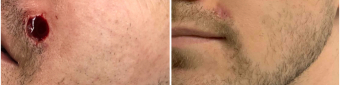 mohs-surgery-nyc-before-after-5-1