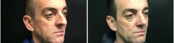 rhinoplasty-surgery-nyc-before-after-1-3