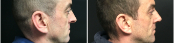 rhinoplasty-surgery-nyc-before-after-1-4