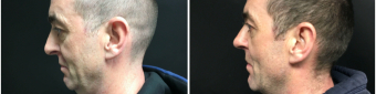 rhinoplasty-surgery-nyc-before-after-1-5