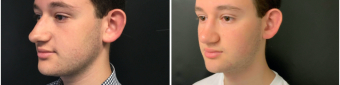 rhinoplasty-surgery-nyc-before-after-2-2