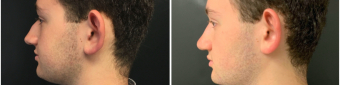 rhinoplasty-surgery-nyc-before-after-2-3