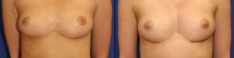 symmastia-before-after-photo-1