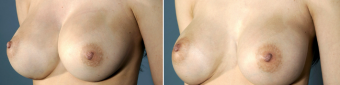 symmastia-before-after-photo-10