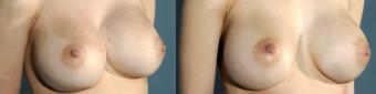 symmastia-before-after-photo-11