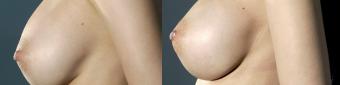symmastia-before-after-photo-12