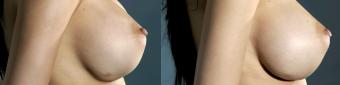 symmastia-before-after-photo-13