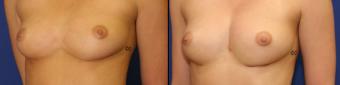 symmastia-before-after-photo-2