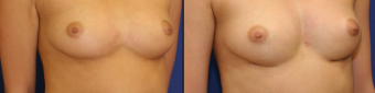 symmastia-before-after-photo-3
