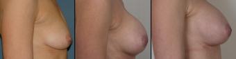 symmastia-before-after-photo-8