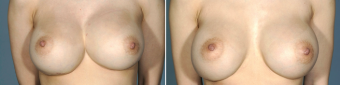 symmastia-before-after-photo-9