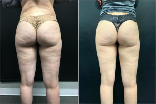 cellulite-treatment-nyc-before-after-1-1