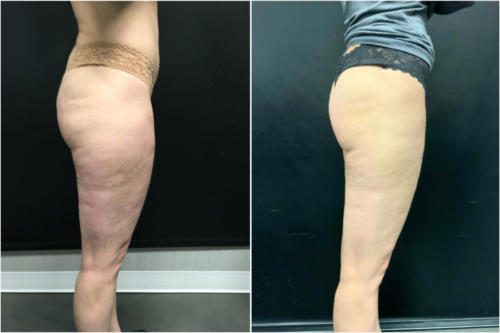 cellulite-treatment-nyc-before-after-1-2