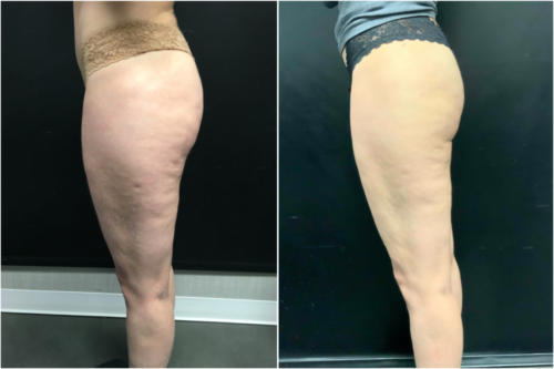 cellulite-treatment-nyc-before-after-1-3