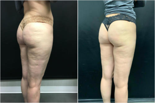 cellulite-treatment-nyc-before-after-1-4