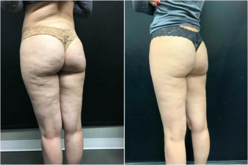 cellulite-treatment-nyc-before-after-1-5